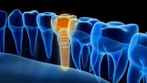 歯科用CTで撮影した3次元データ