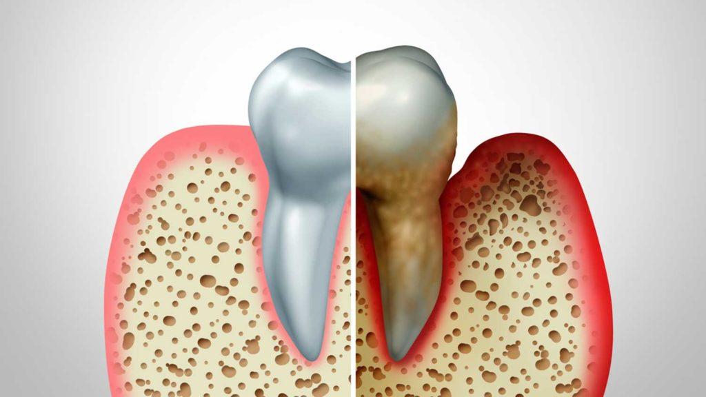 骨が溶けてしまう怖い病気・歯周病